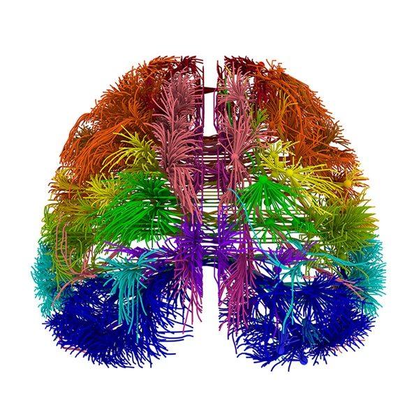 La neurociencia, la música y porqué debería estar en la educación (por enésima vez)